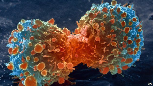 ob_6c0956_83307904-m1320644-lung-cancer-cell-di